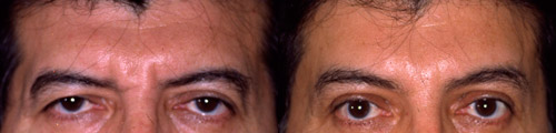 Brow lift surgery before and after male