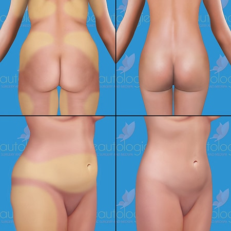 Liposuction Procedures - Beautologie