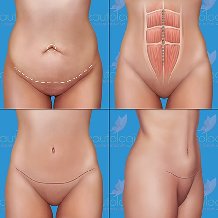 Tummy Tuck Surgery - Beautologie